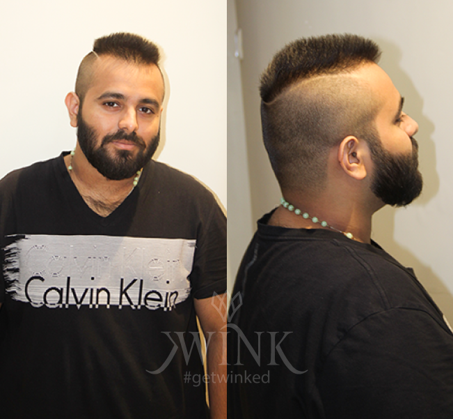 Short hair with high fades and bold partition